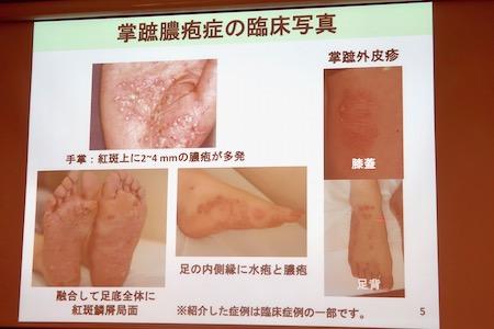掌蹠膿疱症6