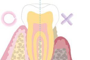 歯周病ってどんな病気なの?症状は?