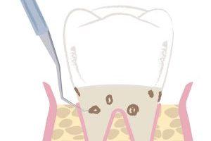 最新の歯周病治療の流れとは?