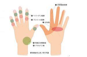 更年期の不調3:「手の不調」②更年期世代に多い手の不調、その症状は?