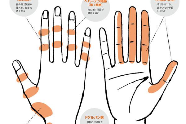 爆発的な反響を呼んだ「手の不調」。症状、治療法、セルフケアなど、最新情報をお届け