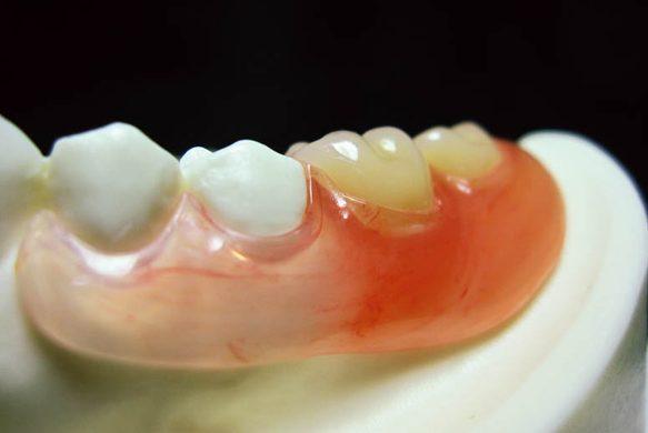 インプラント? 矯正? 大きな変化には慎重に/健康で美しい歯を維持する7つの条件・その6