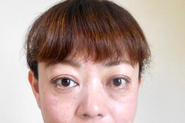 眼球突出の治療は早期に始めるべきだったのに…/甲状腺疾患で涙目、眼球突出に! 50代ライターのバセドウ病眼症闘病記②