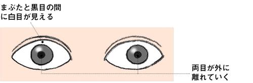 バセドウ病眼症5