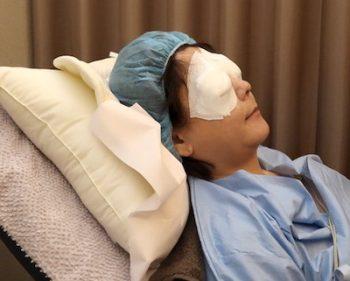 バセドウ病眼症4-3