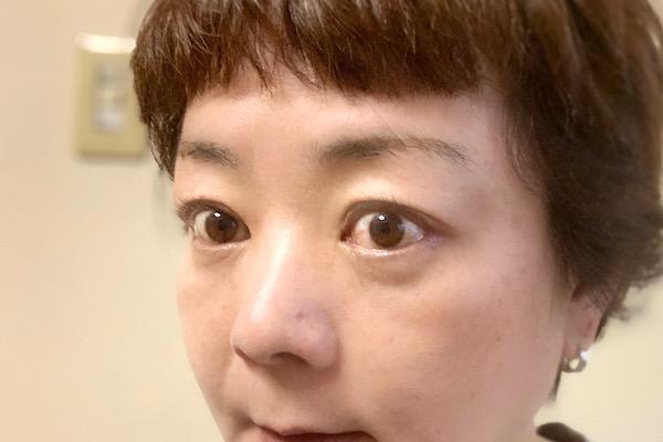 ついに眼症の手術を受ける/甲状腺疾患で涙目、眼球突出に! 50代ライターのバセドウ病眼症闘病記④