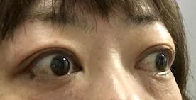 バセドウ病眼症3-5