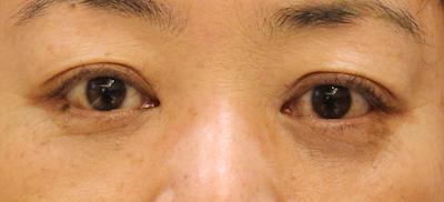 バセドウ病眼症4-7
