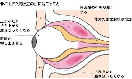 バセドウ病眼症4