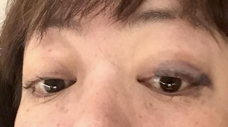 バセドウ病眼症2-5