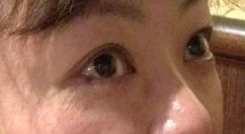 バセドウ病眼症3-4