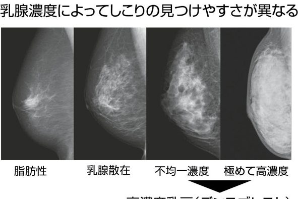 マンモでは、がんを発見しづらい乳房の人がいる?/女性のがん検診2