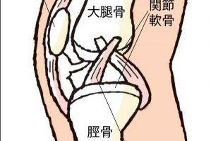 ひざ痛の原因が千差万別なのは、ひざ関節が複雑だから!?