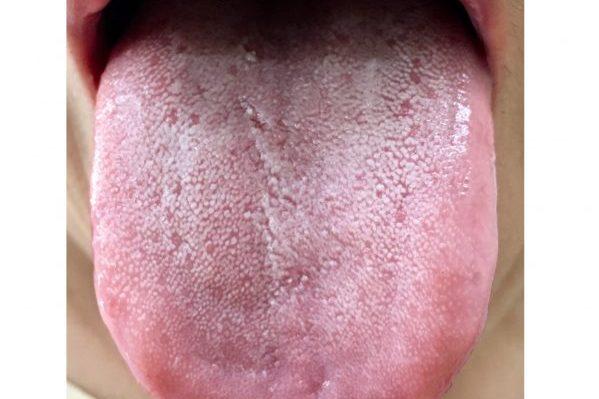 いつのまにか「うつ」。舌を見て今の自分に氣づいてね