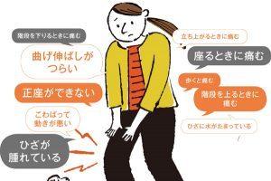 40~50代の4割以上が「ひざ痛」を抱えているってホント?