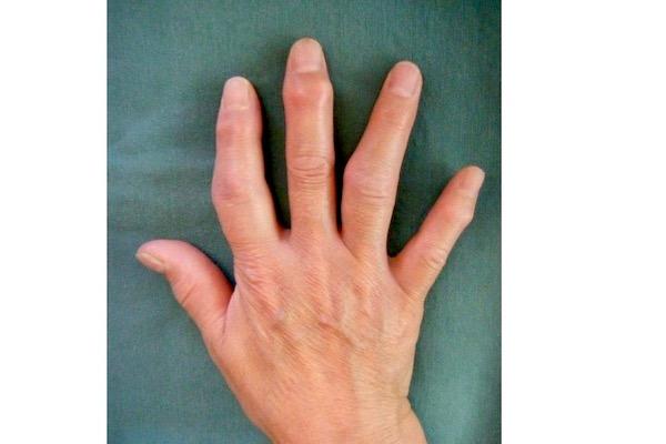 """50代になったら、""""手指の不調""""予防を始めるべき理由とは?"""