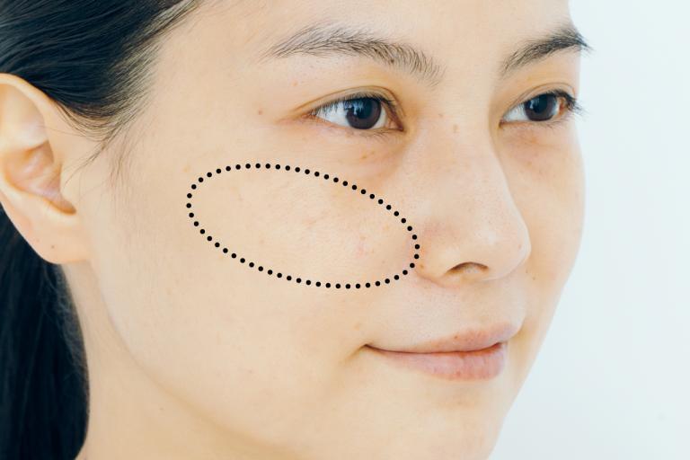 人の視線が集まりがちなそばかすや肝斑は、リキッドタイプでつるんとさせて/タイプ別コンシーラーテクニック②