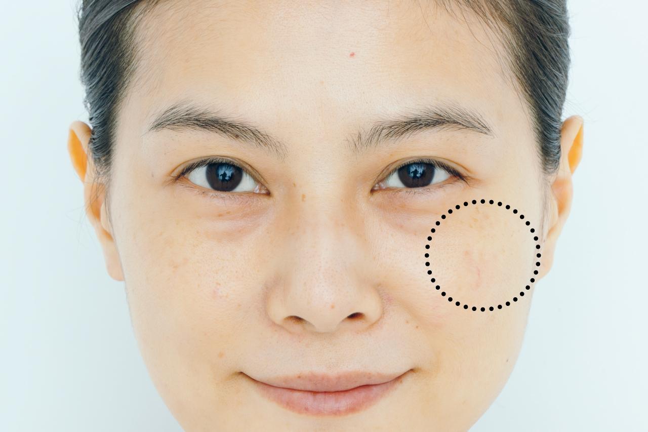 肌を凹凸に見せる濃淡しみには、パレットタイプで重ね塗り/タイプ別コンシーラーテクニック③