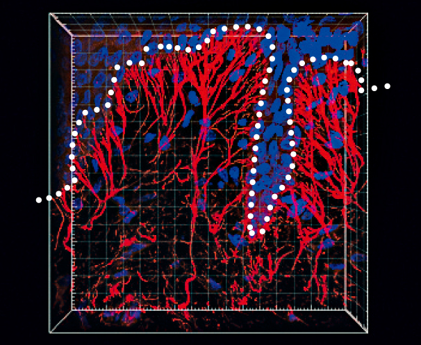 エラスチンの骨格であるマイクロフィブリルが美しい樹状構造に