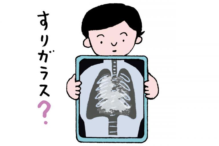 新型コロナによる肺炎とほかの肺炎は見分けがつくの?/根来教授の特別講座③