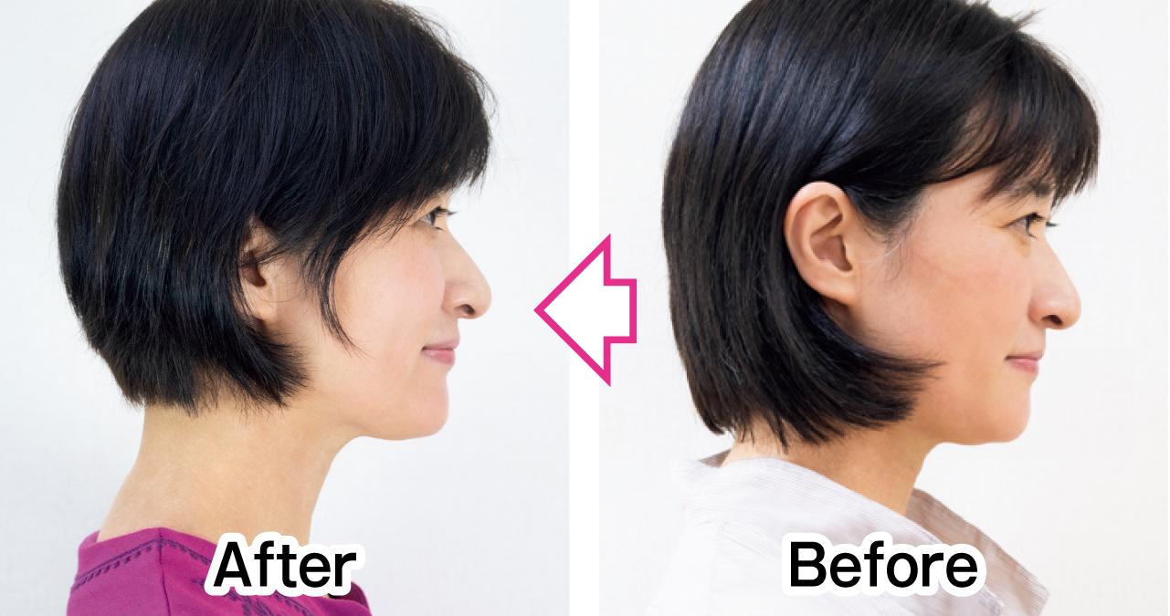 頰と口角の位置がアップ 横顔 Before After
