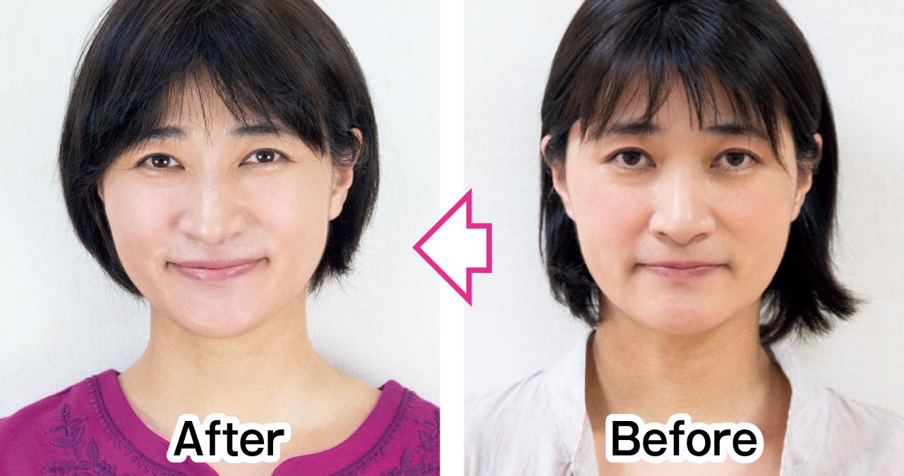 頰と口角の位置がアップ 正面 Before After