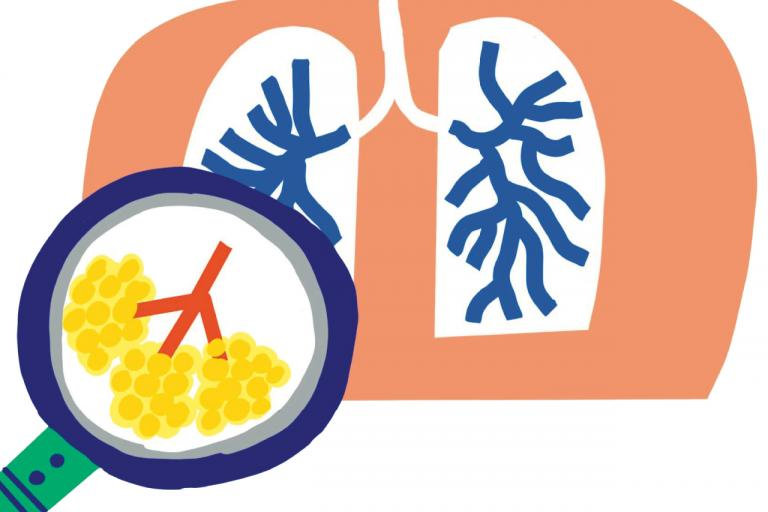 コロナだけじゃない!? 日本人の死因の第3位が「肺炎」って知っていますか?