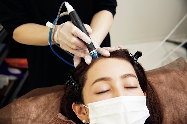ヘアクリニックで薄毛対策。最先端のピーリングと美容成分で「頭皮を活性化」!