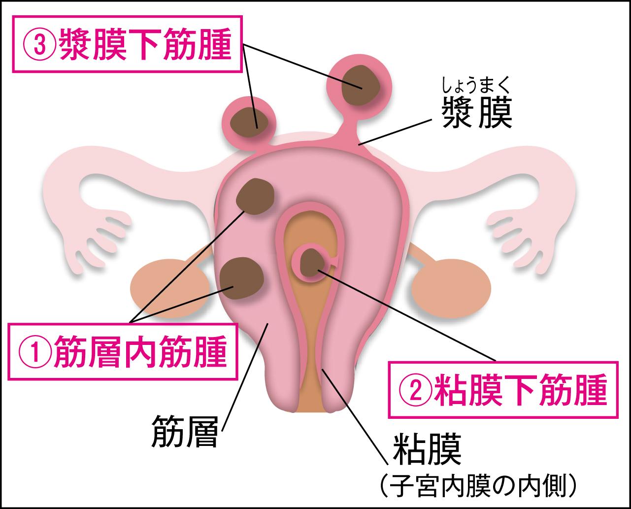 できる場所によって症状も違う子宮筋腫