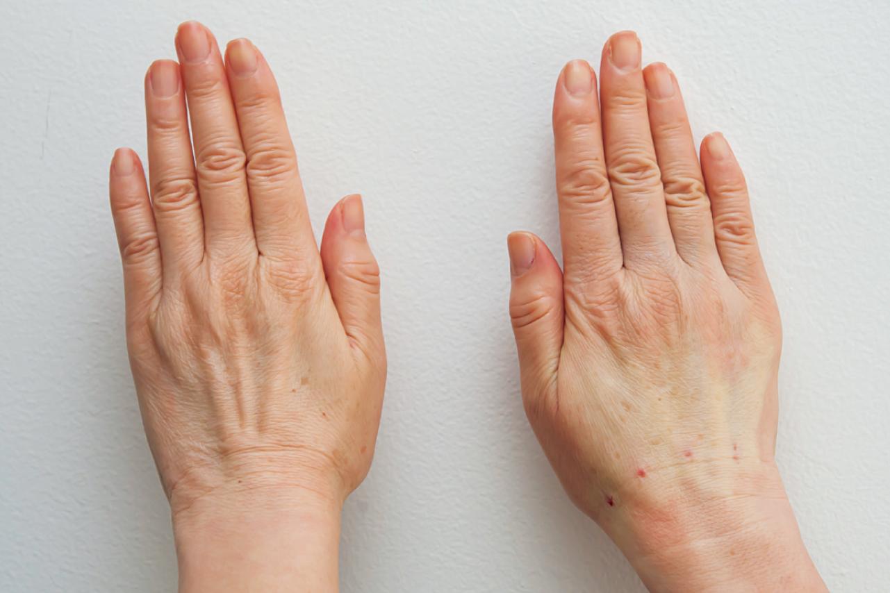 ヒアルロン酸を注入した手の比較