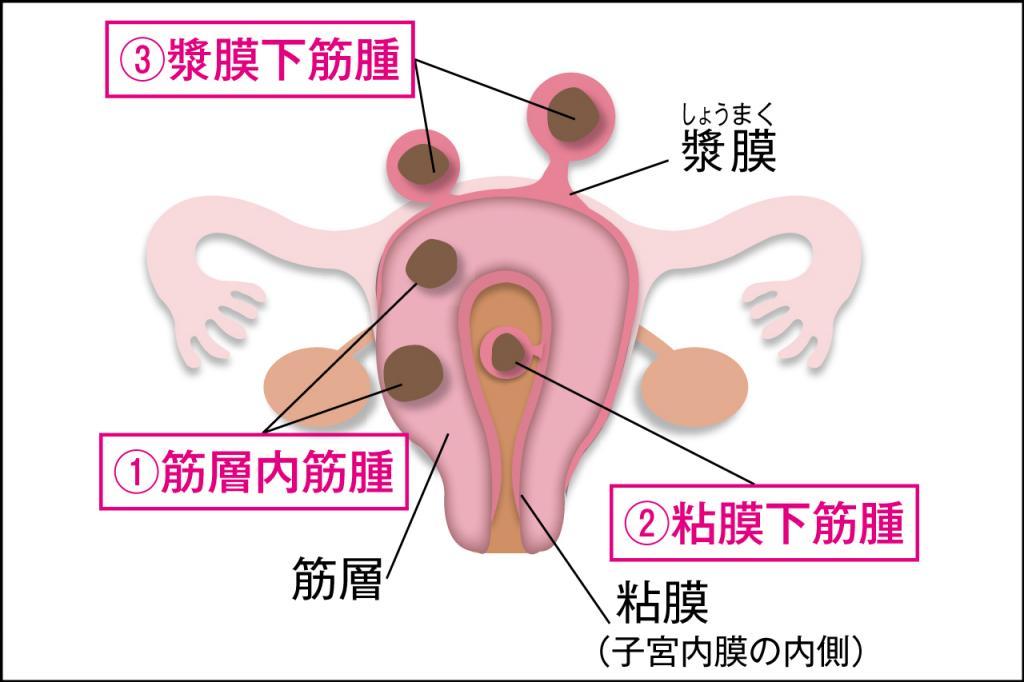 子宮筋腫が大きくなっています。放っておいても大丈夫?/「閉経」みんなの質問④