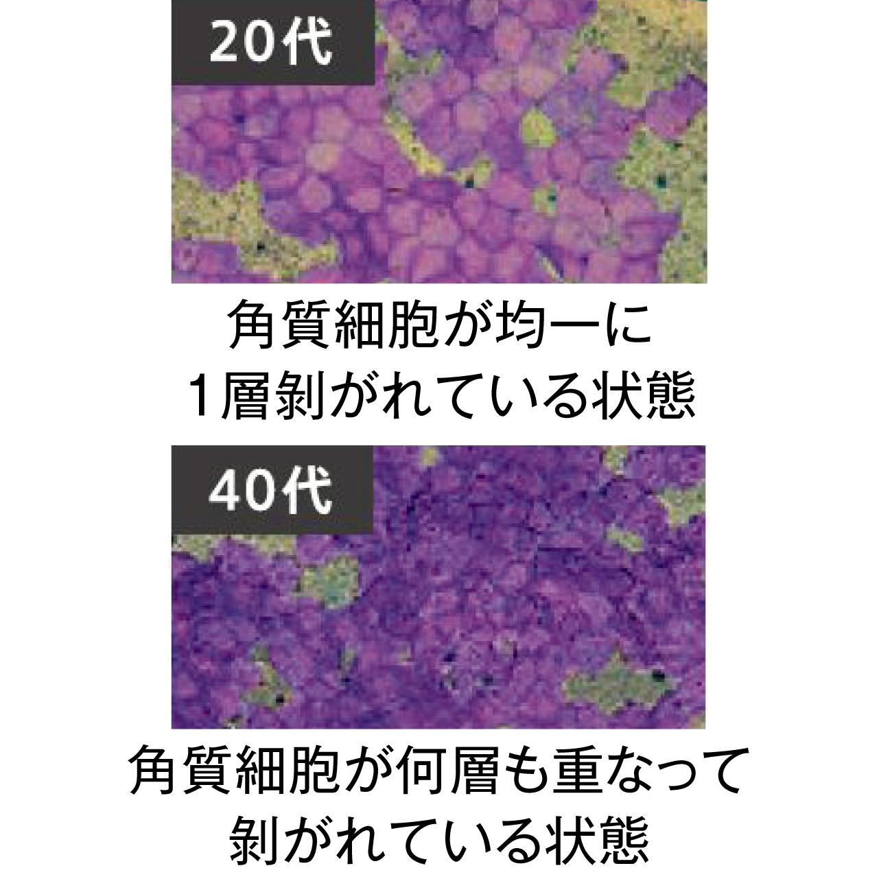 20代 角質細胞が均一に 1層剝がれている状態 40代 角質細胞が何層も重なって剝がれている状態