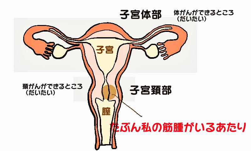 hijiriさん子宮頸がん子宮体癌