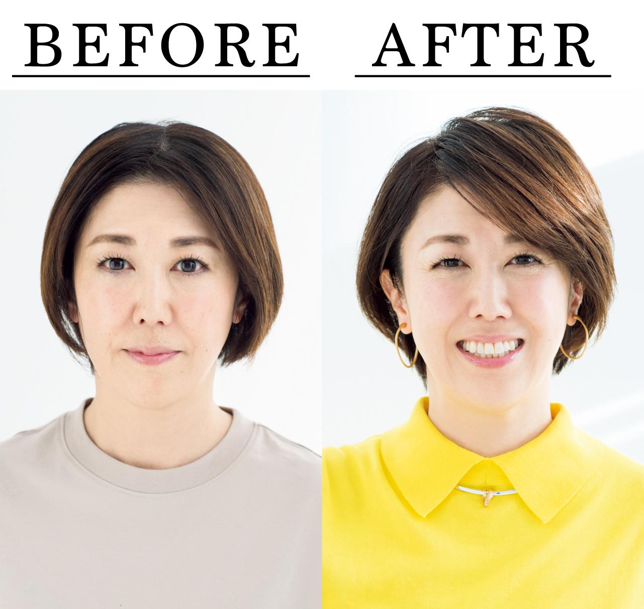 太田有希さん Before After