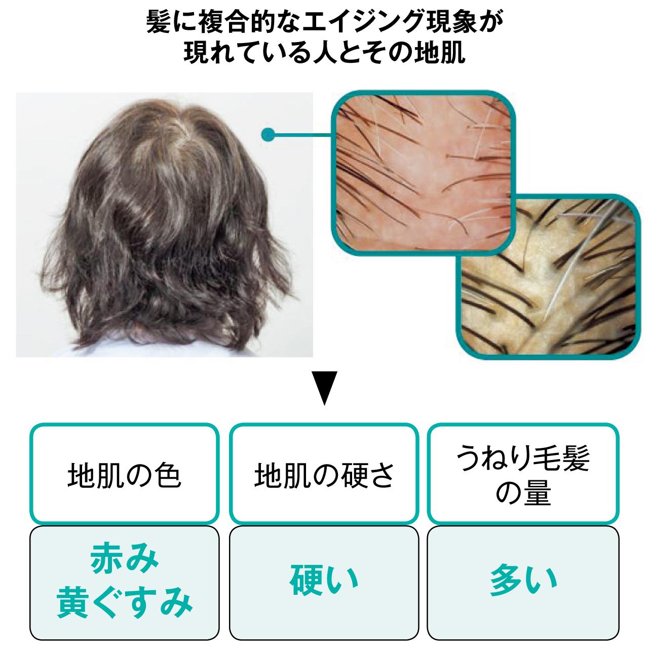 髪に複合的なエイジング現象が現れている人とその地肌