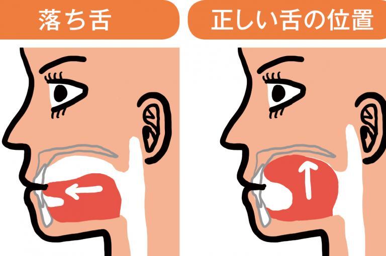 【チェックつき】あなたも「落ち舌」!? 改善すればたるみ解消、小顔になれる!/小顔チャレンジ①
