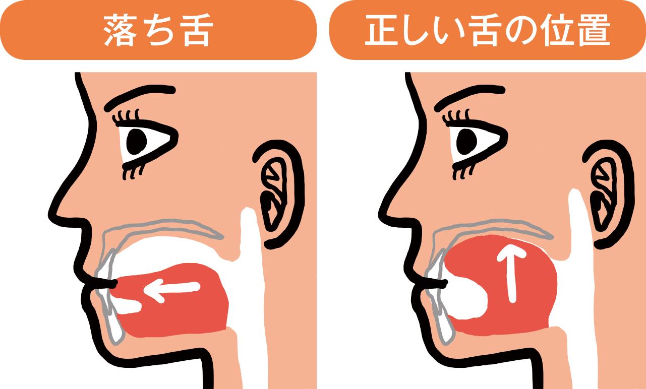 正しい舌の位置と落ち舌のイラスト