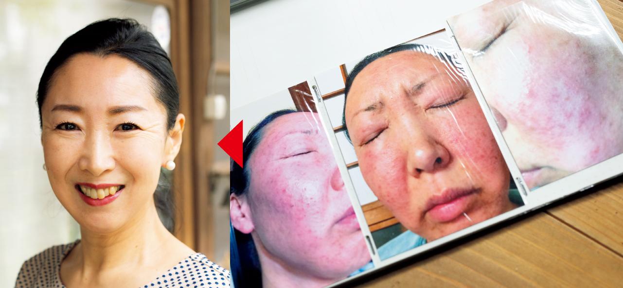 顔が腫れ上がるほどの肌あれに悩まされていた長久美子さんのビフォー&アフター。