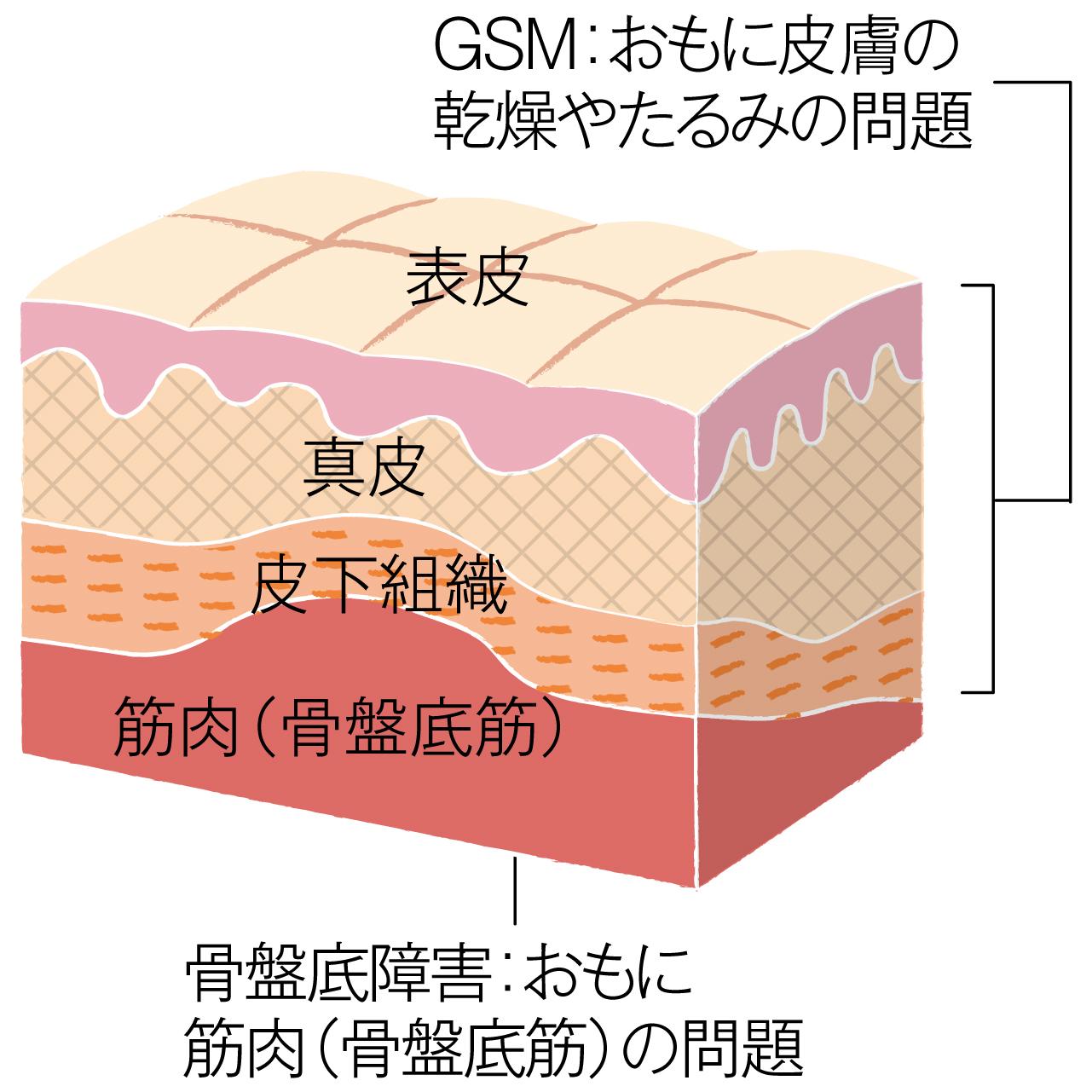 「GSM」と「骨盤底障害」発症する位置の違い(皮膚の断面図)
