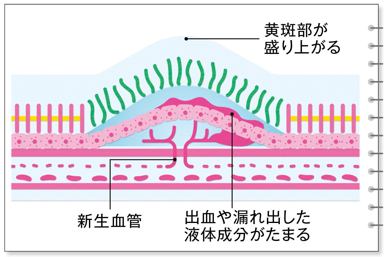 滲出型の加齢黄斑変性