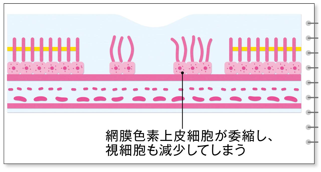 委縮型の加齢黄斑変性