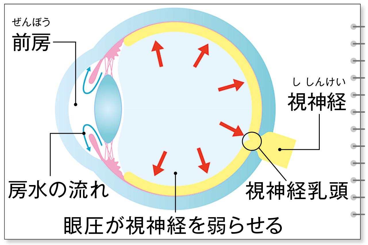 房水の滞り、眼圧が高まるのが原因のひとつ