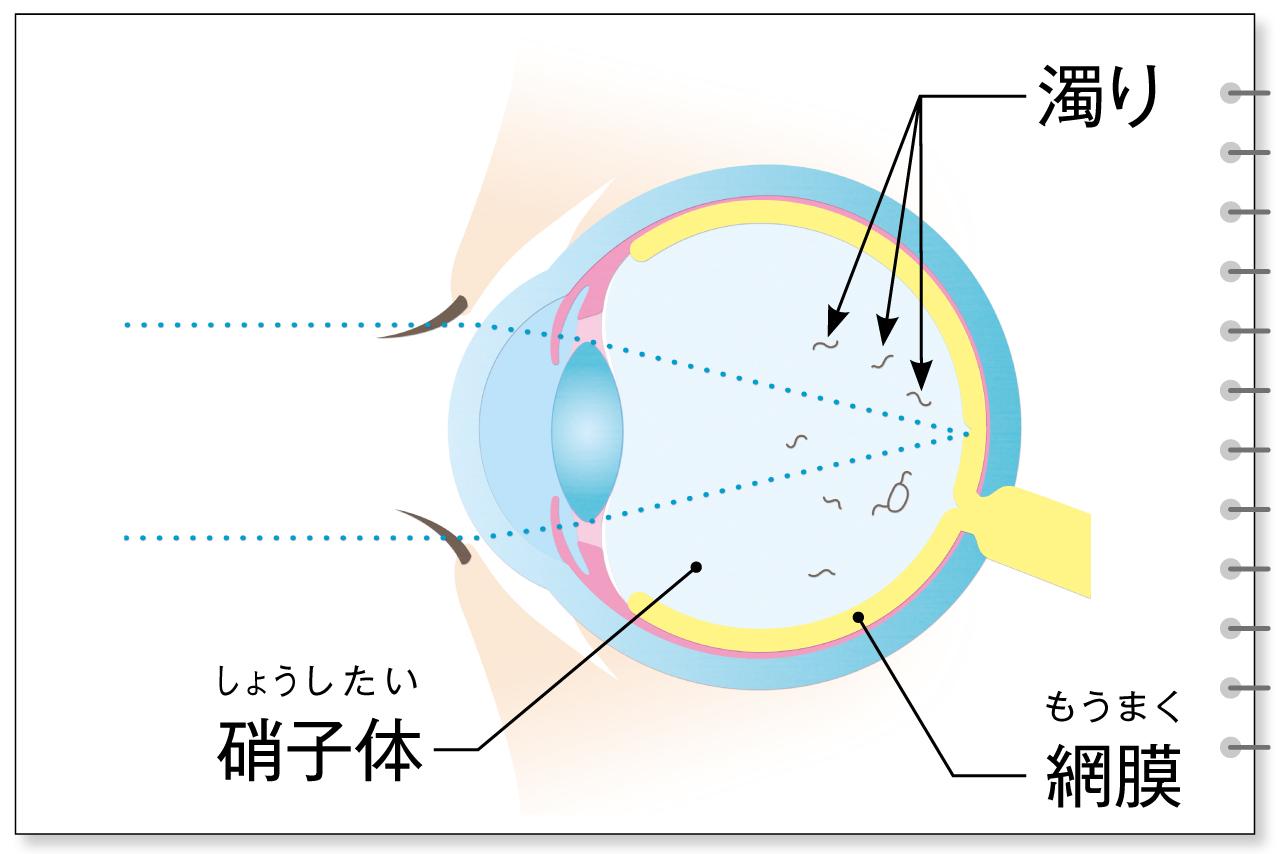 硝子体の濁りが原因の飛蚊症