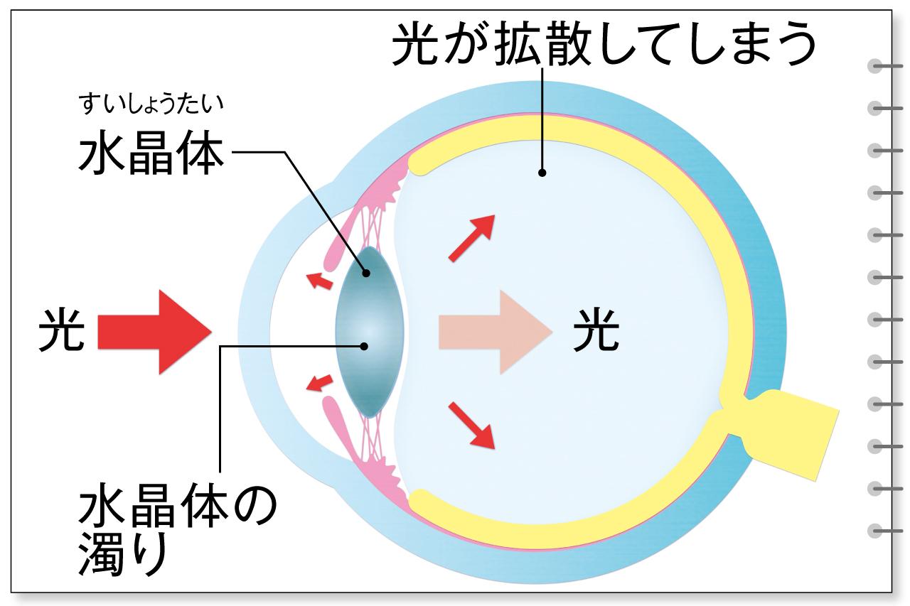 水晶体の濁りが原因の白内障