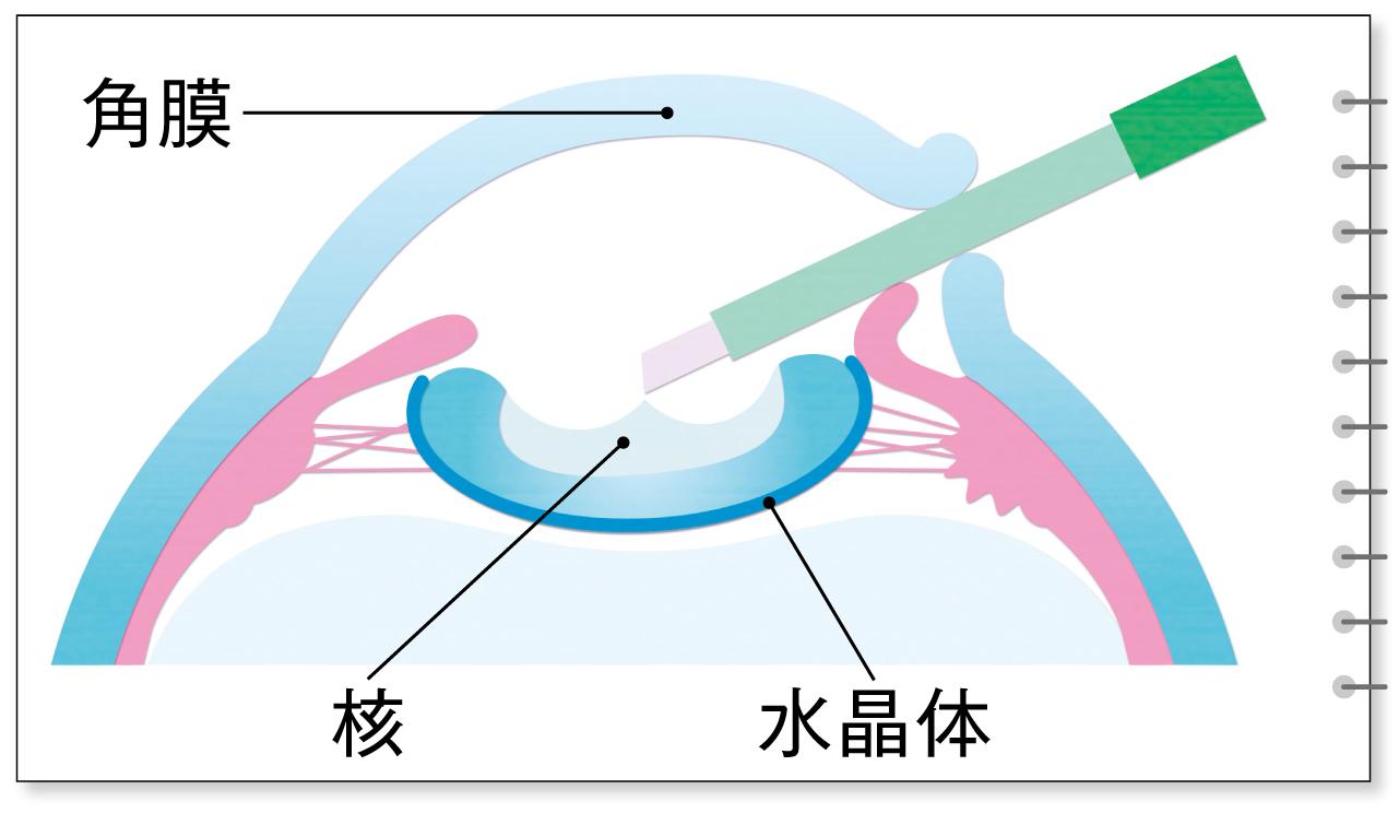 超音波乳化吸引術(PEA+IOL)