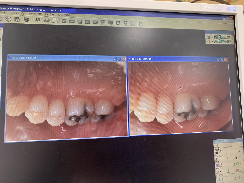 歯間ブラシを使うbefore・afterの歯茎画像