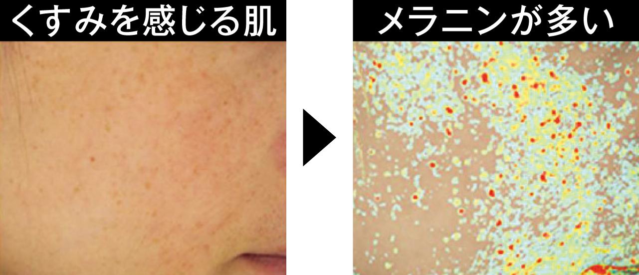 くすみ肌には微細メラニンが点在