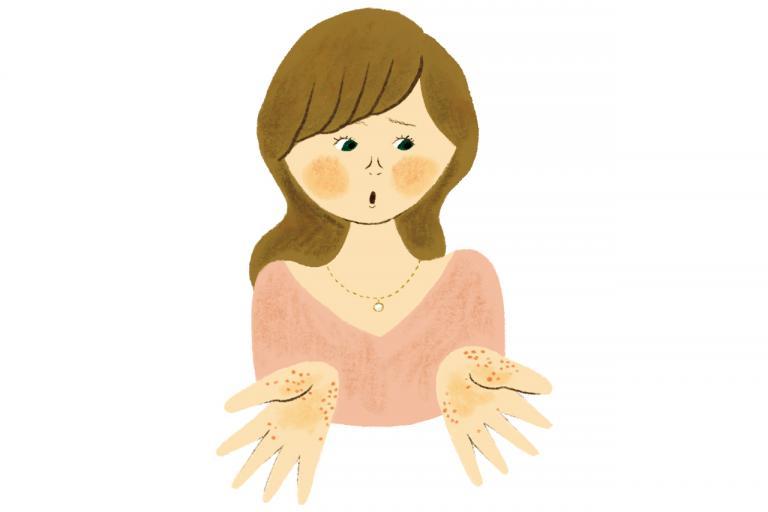 手のひらや足裏に水泡ができる掌蹠膿疱(しょうせきのうほう)症。人にはうつしませんが少しやっかいな病気です/教えてDR.!第13回