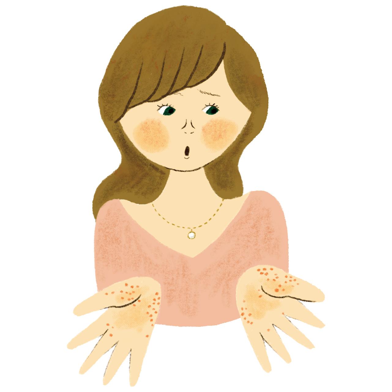 掌蹠膿疱症イラスト