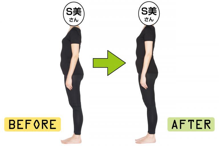 胃と下腹の2段ぽっこりは、呼吸と骨盤底筋で改善できた!<40代・S美さんの場合>/5人のぽっこりお腹凹ませルポ④